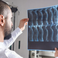 living-with-a-spinal-cord-injury-is-often-expensive.jpg